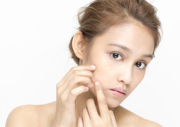 顔の肌ばかりニキビ・くすみ・テカリに悩まされるのはなぜ?原因と対策、体の肌との違いを解説