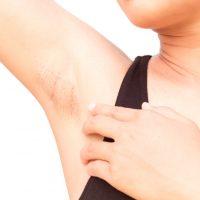 脇の黒ずみ、セルフケアする方法は?皮膚科の先生に聞く、原因と対策